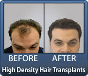 Tightly Packed Grafts Result In High Density Hair Transplant