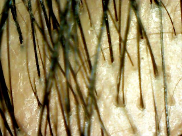 After Treatment 50 Times Magnification