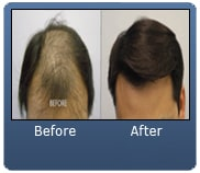 Asian Male Hair Transplant 1