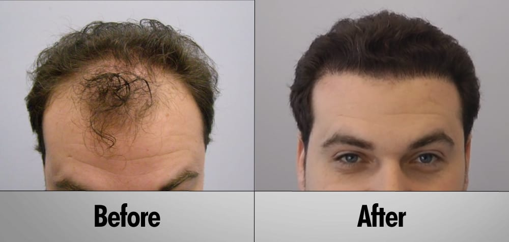 Hair Transplant Costs And Best Value