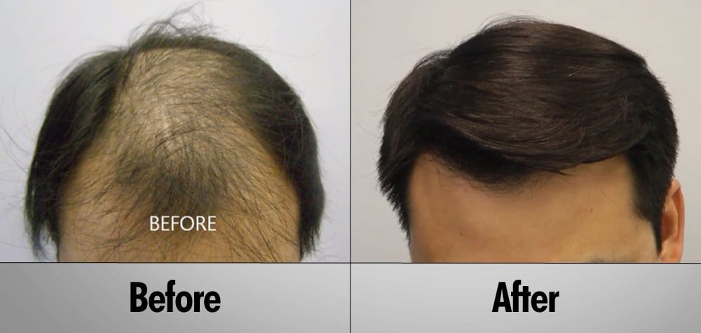 Asian Male Before & After