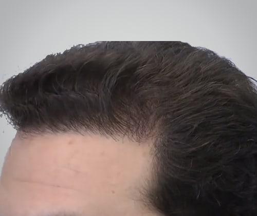 Left side After