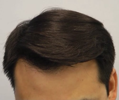Asian Male Before Front After