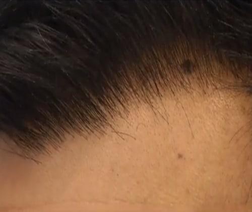 Hairline closeup