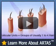 Learn More About The Robotic Hair Transplantation