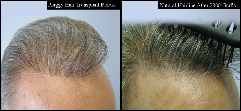 Hair Transplant Repair Right Side