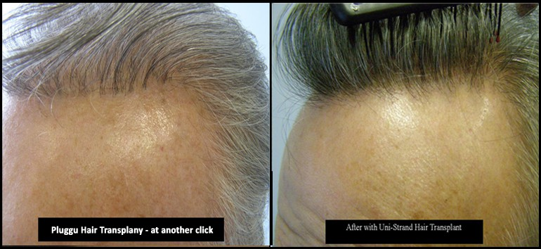 Hair Transplant Repair Left Side