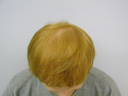 Red Hair Top After 3300 Grafts