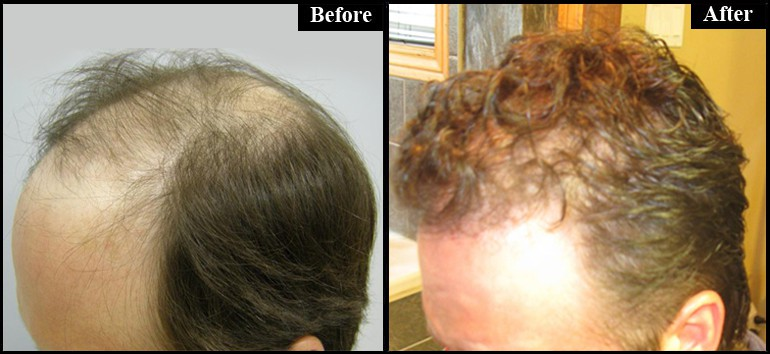 Before & After 3300 Grafts Left Side