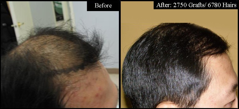 Asian Male 2750 Grafts Right Before & After