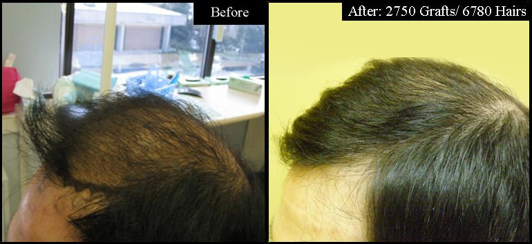 Asian Male 2750 Grafts Left Before & After