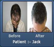 Norwood 1 2000 Grafts Black Curly Hair