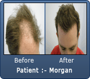 2500 Grafts Before & After