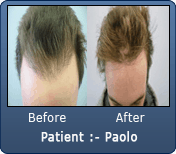 Old Hair Transplant Hair line Repair