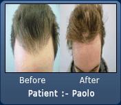 Old Hair Transplant Hair line Repair