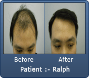 Asian Male Hair Transplant 3200 Grafts 2
