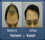 Asian Male Hair Transplant 3200 Grafts 2