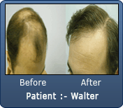 2900 Grafts Before & After Norwood 6