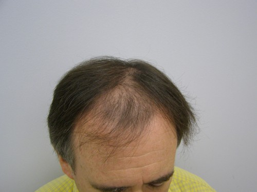 Before 2700 Grafts