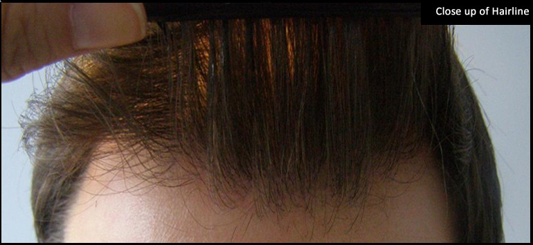 3665 Grafts Hairline Close up.