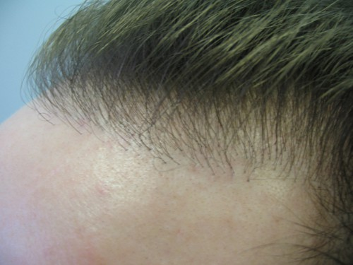 Before Hair Transplant Repair