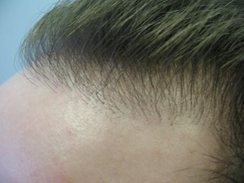 Before Hair Transplant Repair