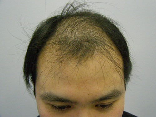 Before 3200 Grafts