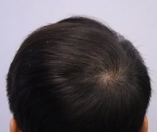 Asian Male Norwood 6 6000 Grafts  Crown After