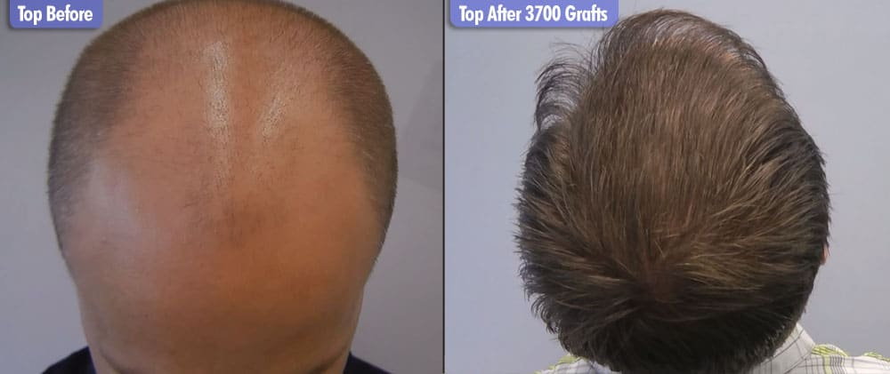 Northern European 3700 Grafts Crown Before & After