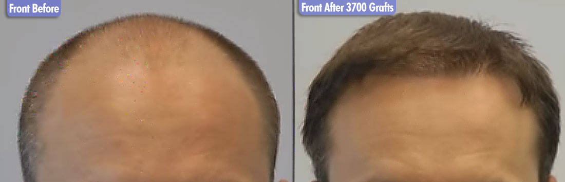 Northern European 3700 Grafts Front Before & After