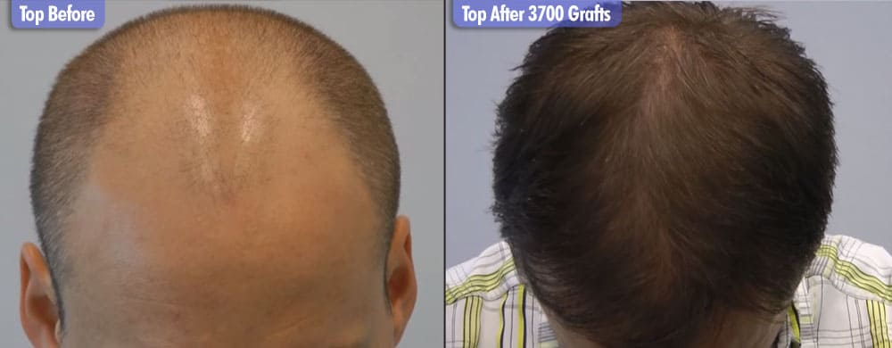 Northern European 3700 Grafts Top Before & After