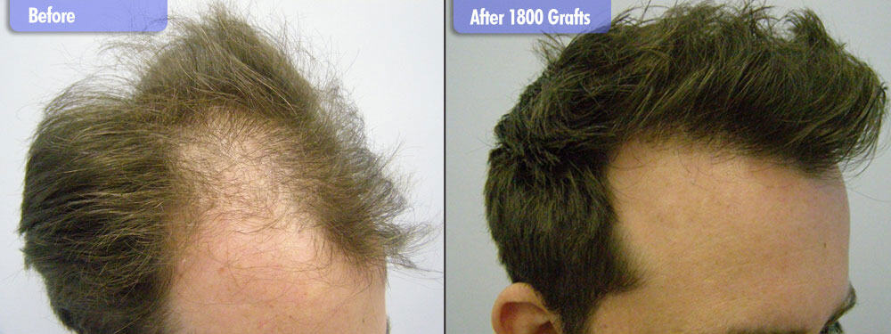 2500 Grafts Before & After Right Side