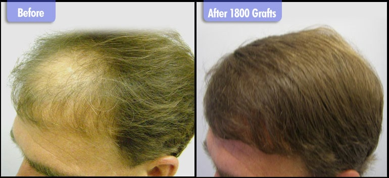 After 1800 Grafts Left Side