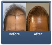 Diffuse Thinning 3000 FUE Grafts