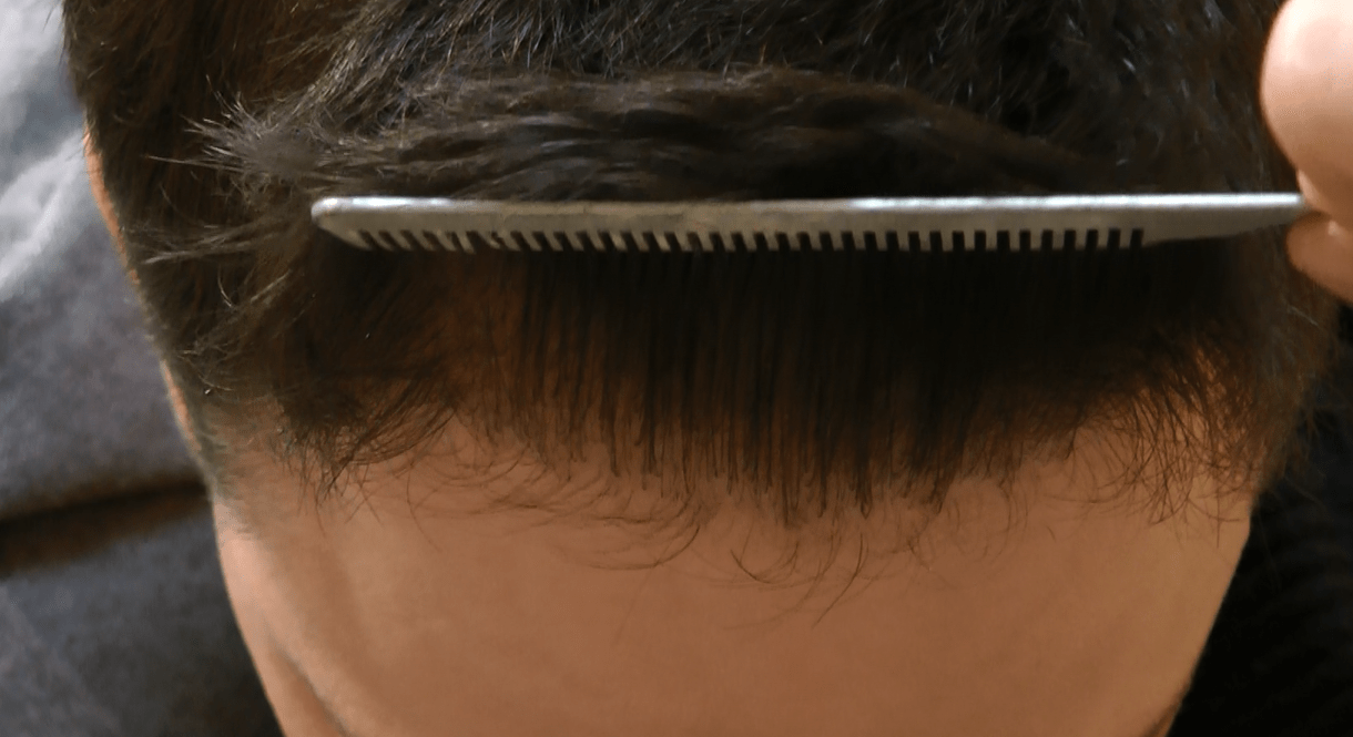 Hairline Closeup After 2200 FUE Grafts