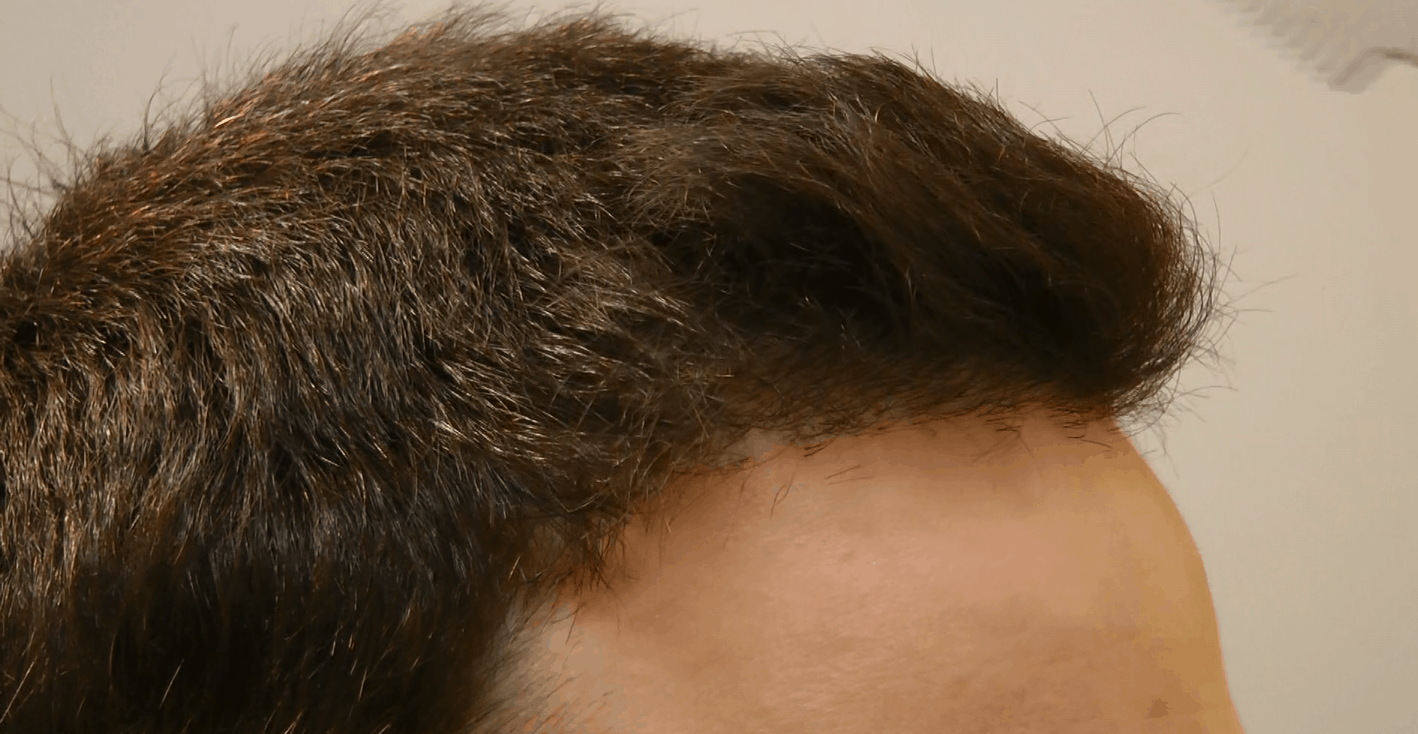 Right Side After 2200 FUE Grafts