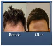 Brown Hair Norwood 1 2000 FUE Grafts