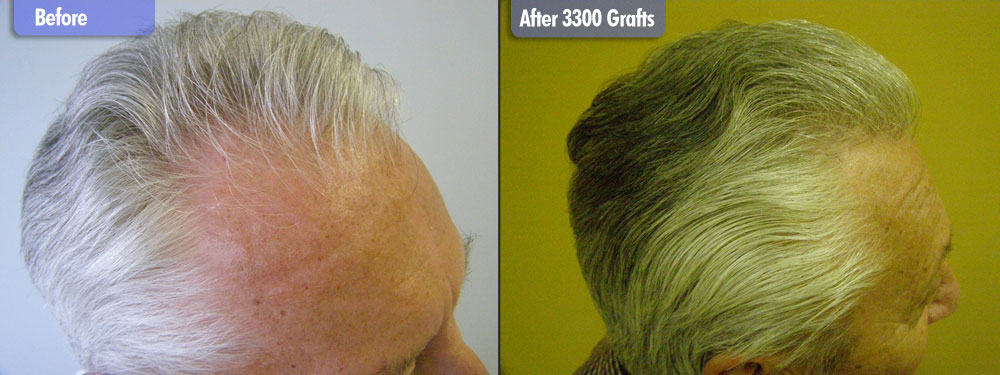 3300 Grafts Silver / Grey Right Side Before & After