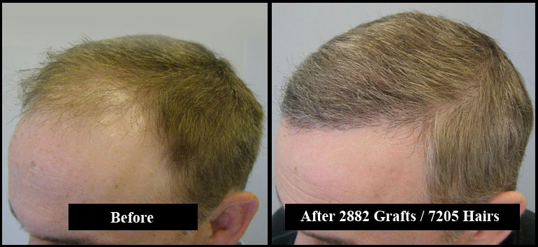 2882 Grafts Short Black & Grey Hair Before & After Left Side