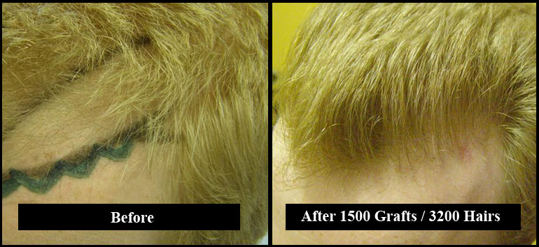 Red Hair 3200 Grafts Before & After Left Side