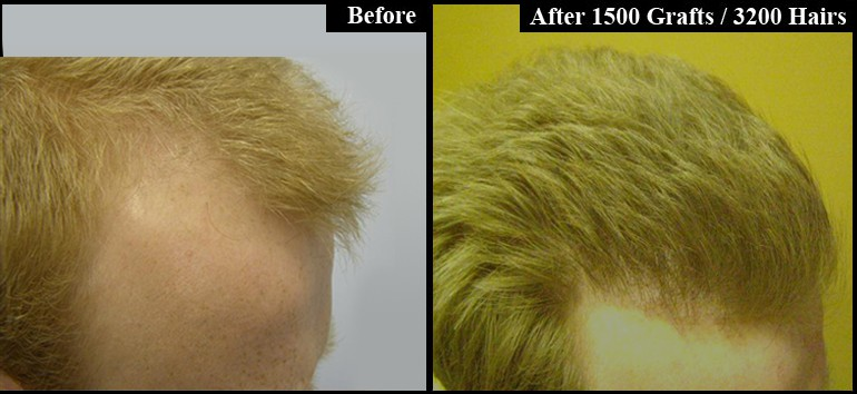 Red Hair 3200 Grafts Before & After Right Side