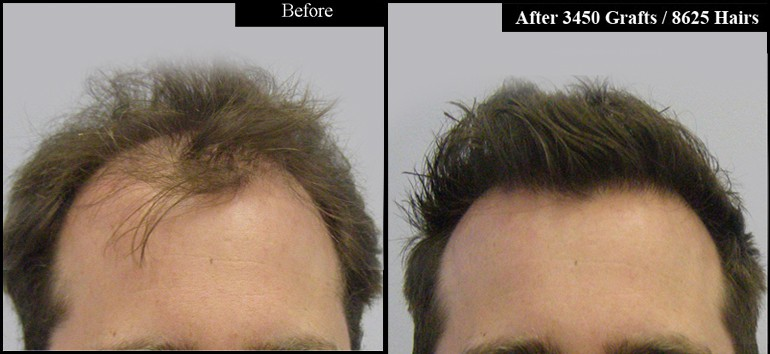 Front Before & After 3450 Grafts