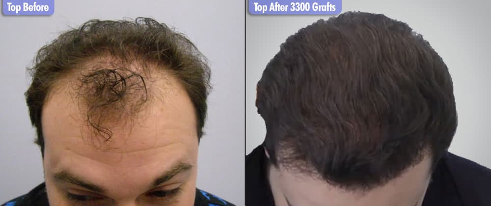European Male 3300 Grafts Top