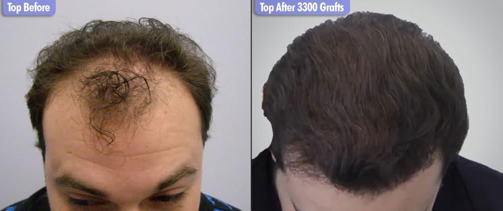 European Male 3300 Grafts Top
