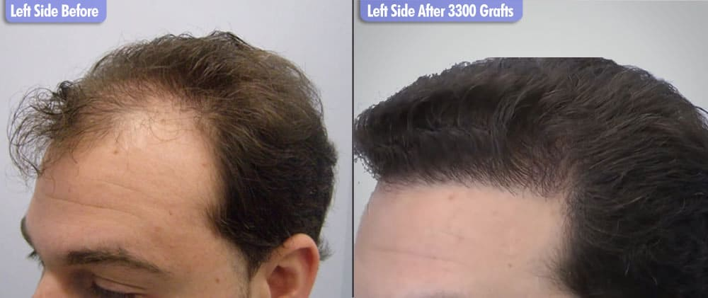 European Male 3300 Grafts  Left Side