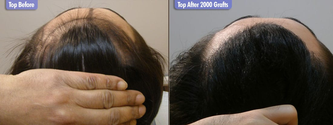 South East Asian 2000 FUE Grafts Top