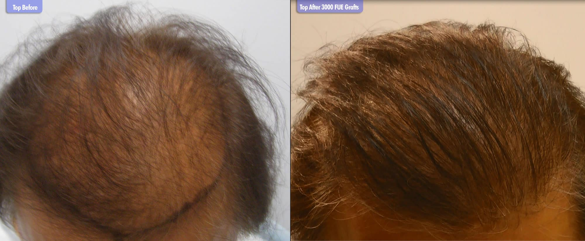 Diffuse Thinning Before & After 3000 FUE Grafts Top