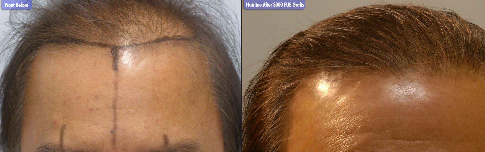 Diffuse Thinning Before & After 3000 FUE Grafts  Hairline