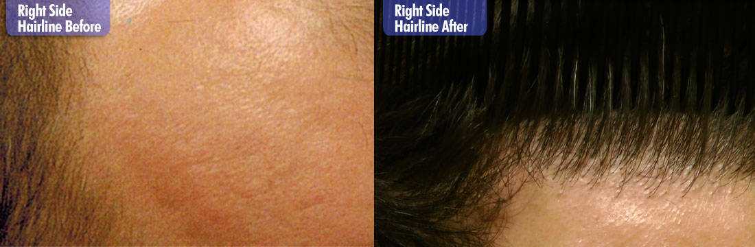 White Male 7200 Grafts Before & After Right Side