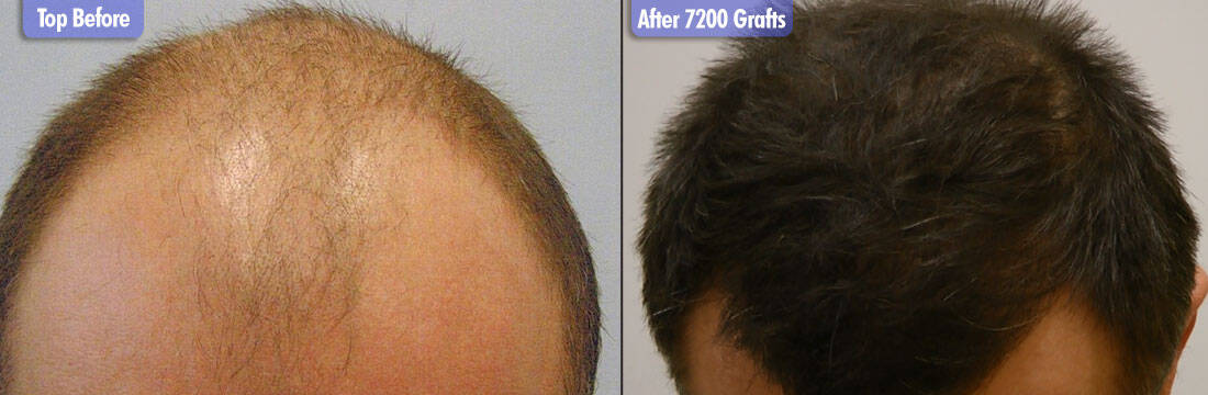 White Male 7200 Grafts Before & After Top